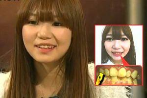 Cô gái xinh đẹp 10 năm không đánh răng khiến bạn trai vừa hôn đã bỏ chạy mất dép