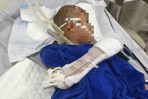Đang chơi ở sân, bé gái 7 tuổi bị nam thanh niên chém trọng thương