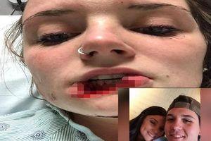Cắn đứt môi bạn gái cũ vì không chịu quay lại, chàng trai bị tuyên án 12 năm tù