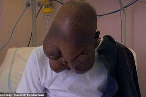 Bệnh ung thư cực hiếm khiến nam thanh niên 18 tuổi bị gọi là 'quái vật'