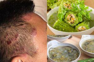 Một số món ăn trị vảy nến người bệnh nên dùng thường xuyên