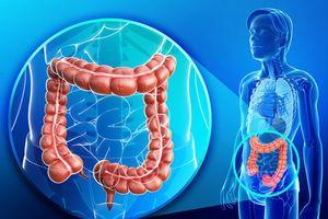 Vi khuẩn trong miệng và phân giúp phát hiện ung thư đại trực tràng
