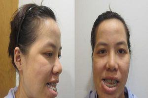 Cô giáo thanh nhạc Bình Định bị chê chuyên môn thấp vì 'mặt méo'