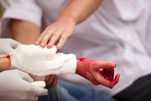 Đừng để mất mạng vì không biết cách sơ cứu cầm máu