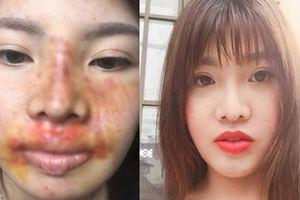 'Thị Nở' Quách Phượng đăng ảnh bị trầy xước hết mặt do bị ngã khiến dân mạng lo lắng vết thương có thể biến chứng
