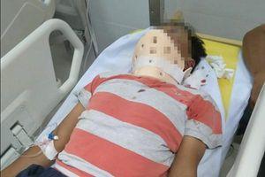 Đột ngột bị tấn công trên đường, người đàn ông nhập viện vì chấn thương não