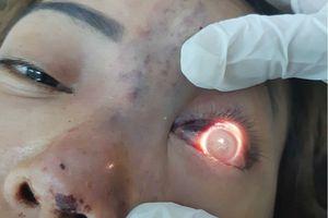 Phẫu thuật thẩm mỹ: Cẩn thận rước họa vào thân