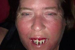 Gắn răng giả hóa trang Halloween, suýt mất răng thật