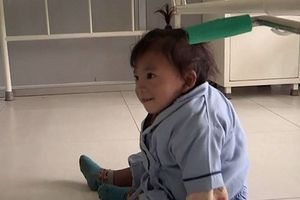 Bé trai Nepal 'mọc' cánh tay ở… lưng