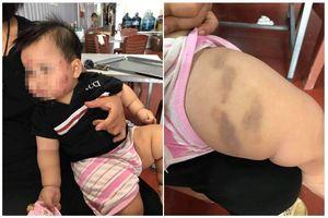 Phụ huynh tố trẻ 11 tháng tuổi bị cắn khắp mặt ở lớp mầm non