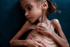 Bé gái da bọc xương gây chấn động thế giới về nạn đói ở Yemen qua đời