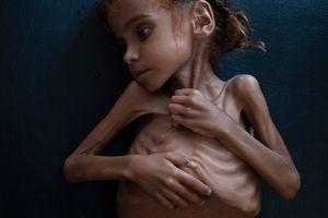Bé gái suy dinh dưỡng - biểu tượng của nạn đói Yemen đã qua đời