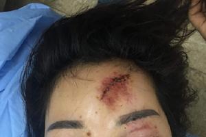 Hải Phòng: Người dân 'tố' bị bảo vệ công ty Tân Hoàng An hành hung