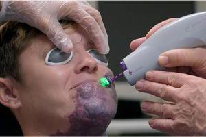 Người phụ nữ có vết chàm 'khủng' trên mặt