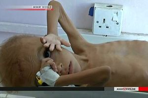 400.000 trẻ em Yemen bị suy dinh dưỡng cấp nghiêm trọng