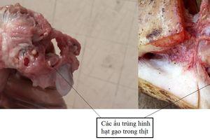 Ăn món khoái khẩu từ thịt lợn, thịt bò tái: Sán dây 'tấn công' lên não nguy kịch