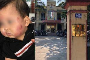 Việt Yên - Bắc Giang: Đình chỉ cô giáo và hoạt động của Nhóm trẻ mầm non Vân Vũ 2