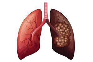 Hơn 20.000 người Việt chết vì ung thư phổi mỗi năm