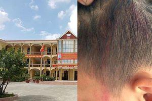 Xác minh vụ cô hiệu phó túm tóc học sinh đập đầu vào tường vì vẽ bậy lên tường của lớp
