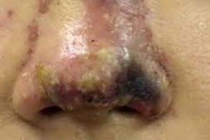 Nữ sinh hoại tử mũi vì làm thẩm mỹ