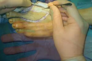 Mất ngón tay, ghép ngón chân thay thế