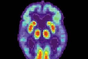 Mỹ phát triển thuật toán chẩn đoán chính xác bệnh Alzheimer