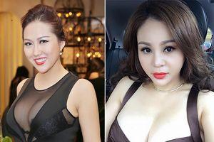 Cứ ngỡ Phi Thanh Vân phẫu thuật thẩm mỹ nhiều nhất, hóa ra 2 sao nữ này còn chẳng nhớ nổi số lần dao kéo