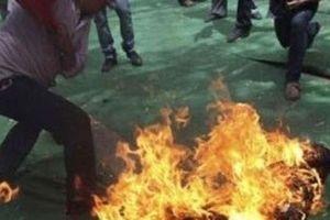 Điều tra người chồng tẩm xăng đốt vợ vì ghen tuông