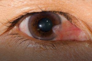 Mắt dễ bị mộng thịt khi tiếp xúc nhiều với ánh mặt trời