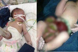 Xót xa bé gái sơ sinh bị 'xổ' ruột ngoài ổ bụng, chỉ được cắt dây rốn bằng cây nứa