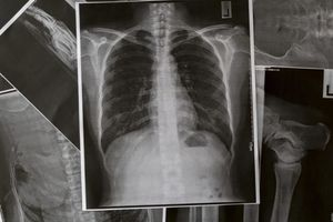 Những dấu hiệu dễ phát hiện của bệnh phổi chớ nên bỏ qua