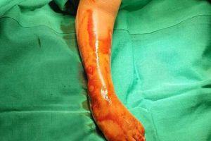 Bé gái bị khoèo chân được phẫu thuật thoát khỏi nguy cơ tàn tật