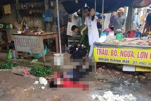 Đối tượng bắn chết người bán đậu phụ đang hôn mê, tiên lượng xấu