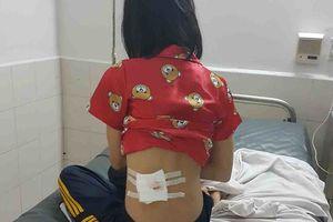 Vụ người đi đường bị trúng đạn CSGT: Công an chính thức thông tin