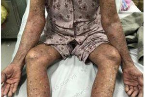 Cụ bà 83 tuổi đỏ da toàn thân do tự ý dùng thuốc trị gút