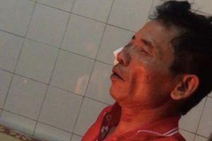 Hé lộ nguyên nhân người đàn ông bị bạn nhậu đâm tử vong ở Nam Định