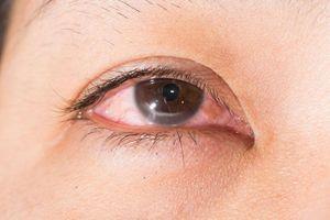 Nguy cơ mù lòa vì loét giác mạc do mất cảm giác