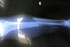Tai nạn trên cao tốc Đà Nẵng - Quảng Ngãi, 2 người bị thương