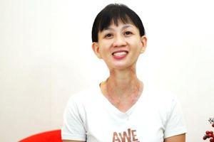 Người phụ nữ sống sót sau 21 năm chống chọi ung thư cổ họng và 'cơn ác mộng' thực sự của đời mình