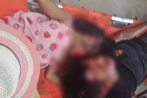 Thừa Thiên Huế: Hai cha con tử vong sau cú va chạm kinh hoàng