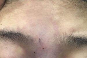Cô gái trẻ mù một mắt vì bạn trai thực hành tiêm filer làm đẹp