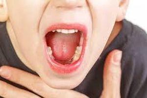 Phòng ngừa, giảm viêm amidan tại nhà đơn giản và hiệu quả
