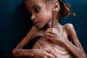 Ám ảnh nạn đói tại Yemen: 85.000 trẻ em tử vong vì thiếu dinh dưỡng