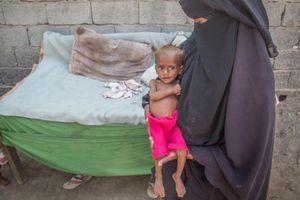 Chiến tranh Yemen: 85.000 trẻ em chết vì đói