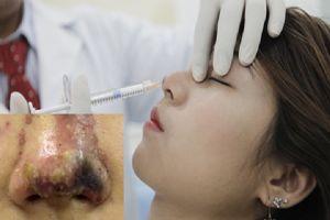 TP.HCM: Cô gái bị mù mắt sau khi được bạn trai tiêm filler nâng mũi