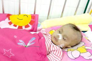 Cứu sống bé trai mới 8 tháng tuổi bị hẹp khí quản bẩm sinh trong tình trạng 'ngàn cân treo sợi tóc'