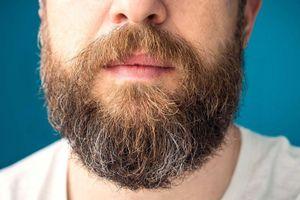 Nhìn râu đoán tình trạng sức khỏe