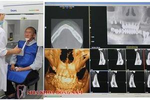 Tiêu xương hàm không còn cản trở việc trồng răng giả