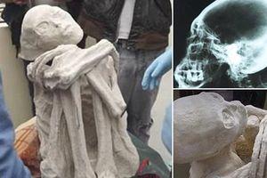 Chi tiết cực sốc về xác ướp 'người ngoài hành tinh' tay 3 ngón