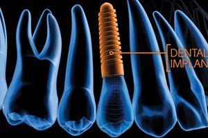 Trồng răng Implant hiện đại ở Nha khoa Đông Nam
